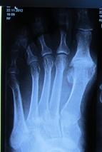 Дефартроз 1 го плюснефалангового сустава лечение укрепление хрящевой ткани суставов