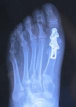 Остеоартроз 1 плюсне-фалангового сустава лечение какой холодец лучше для суставов