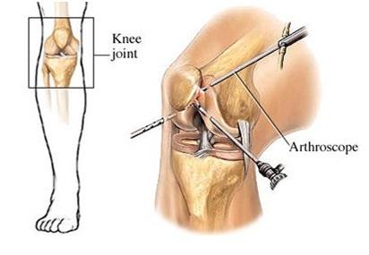Артроскопия коленого сустава удаление кисты на мениске растяжение связок голеностопного сустава мази