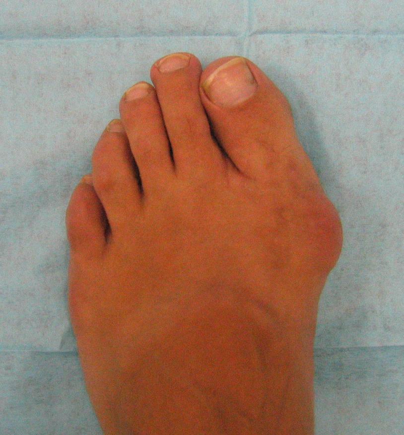 Фото ножки ступни 6 фотография