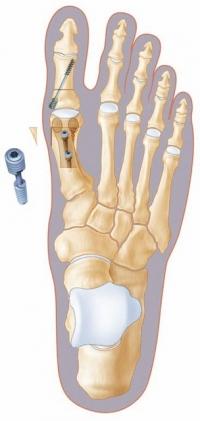 Как долго продолжается артрит