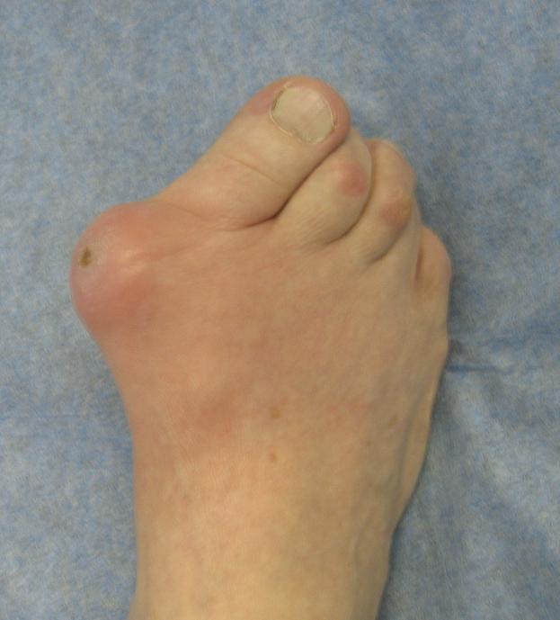 Боли в больших пальцах и в косточке на ноге (шишки ...