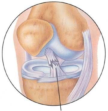 Изображение - Повреждение передней крестообразной связки коленного сустава krest_svyazka