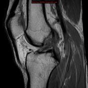 Изображение - Повреждение передней крестообразной связки коленного сустава krest_svyazka4