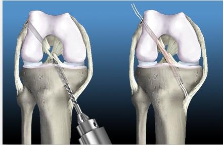 Интралигаментарное повреждение внутрисуставной крестообразной связки амплитуда движений в голеностопном суставе в норме
